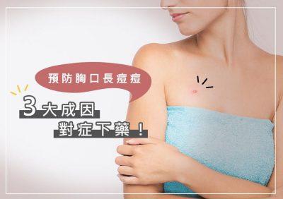 胸口長痘痘會癢怎麼辦?3種成因正確了解,才能預防再次發生!